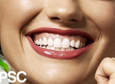 گامی اسمایل یا لبخند لثه ای چیست